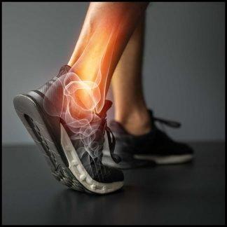 Arthritis / Joint and Bone